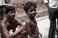 Dipu (5) of Joana village in Jajmau area is a neurological patient with physical deformities. The pollution in ground water and drinking water is caused by the chemically polluted waste water from the tanneries. This causes health problems in Jajmau area. Kanpur, Uttar Pradesh, India. Arindam Mukherjee