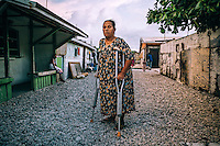 Erina Paul, 55, near her house. Erina's family was relocated from Rongelap Atoll after Americans tested the 'Castle Bravo' nuclear device on nearby Bikini Atoll. In 1963 Erina became paralysed after catching polio after an epidemic hit the island; the incidence of affection reached 91.3 per 1000 and caused eleven deaths and 212 recorded cases of full or partial paralysis. Professional observers blamed the outbreak of polio in part on the American administration's failure to immunise the population of Ebeye against the disease despite the existence of an approved, available, and cost-efficient vaccine.