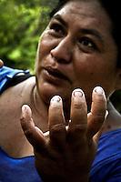 Cachimbo, San Francisco Ixhuat&aacute;n, Oaxaca. 11/05/2015.-Ante la insuficiente atenci&oacute;n por parte de la Secretaria de Salud hacia los pobladores que habitan las comunidades con alto &iacute;ndice de pobreza y marginaci&oacute;n ubicadas en los l&iacute;mites de Oaxaca y Chiapas, el virus de la &ldquo;Chinkungunya&rdquo; transmitido por el mosquito portador Aedes aegypti y Aedes albopictus se ha extendido r&aacute;pidamente en esta zona, sumando los terribles padecimientos de esta enfermedad al ya bastante dif&iacute;cil panorama de vida que tienen estas personas.<br /> <br />  <br /> <br /> En este contexto, los m&aacute;s afectados por la expansi&oacute;n de este virus en la regi&oacute;n istme&ntilde;a de Oaxaca, as&iacute; como los l&iacute;mites de la entidad con el estado de Chiapas, han sido los pobladores de la isla de &ldquo;Cachimbo&rdquo; perteneciente al municipio de San Francisco Ixhuat&aacute;n; localidad aislada, ausente de todos los servicios b&aacute;sicos, y con un &iacute;ndice de marginaci&oacute;n enorme, ya que sus habitantes solo sobreviven de la fertilidad de sus tierras y las dadivas del mar, mismas que son regidas por los fen&oacute;menos meteorol&oacute;gicos y resultan la mayor&iacute;a de veces ser insuficientes.<br /> <br />  <br /> <br /> Dicha poblaci&oacute;n tiene poco menos de 200 habitantes, siendo que el n&uacute;mero de pobladores ha disminuido debido a la gran migraci&oacute;n, ya que ante al alto grado de pobreza, la carencia de servicios b&aacute;sicos, se ha aunado la propagaci&oacute;n de enfermedades, tales como la artritis epid&eacute;rmica &ldquo;Chinkungunya&rdquo; o tambi&eacute;n conocida como fiebre &ldquo;Chinkungu&ntilde;a&rdquo;, virus que no ha sido controlado debido a la indiferencia marcada por parte del gobierno estatal, quien fuera de aportar con atenci&oacute;n m&eacute;dica, dotaci&oacute;n de medicamentos y fumigaci&oacute;n inmediata, ha ignorado dicha localidad.<br /> <br />  <br /> <br /> A dec