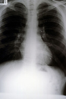 Normal chest x-ray showing heart and lungs. This image may only be used to portray the subject in a positive manner..© shoutpictures.com..john@shoutpictures.com