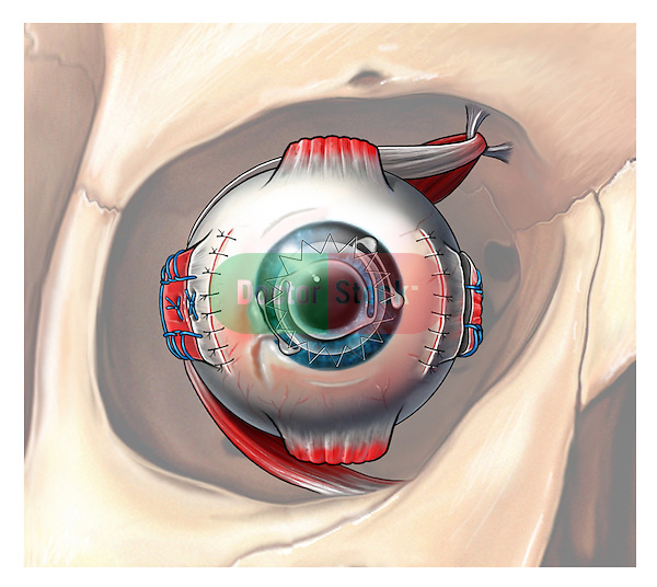 The lens has been removed due to cataract and an anterior chamber lens has been placced, the scarring cornea is replaced  & the estropia condition is corrected by repositioning the medial rectus muscle and shortening the lateral rectus muscle and reattaching it to original insertion point.