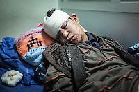 IRAK, Erbil: Mouhmin Safwan Ahmed, 13 years old, lay down a bed of the Erbil Emergency Hospital after being injured by a suicide car bombing of Daesh in Mosul. He lost his parents in the attack, the 14th December 2016.<br /> <br /> IRAK, Erbil: Mouhmin Safwan Ahmed, &acirc;g&eacute; de 13 ans, est allong&eacute; sur un lit de l'h&ocirc;pital d'urgence d'Erbil apr&egrave;s avoir &eacute;t&eacute; bless&eacute; par une voiture pi&eacute;g&eacute;e de Daesh &agrave; Mossoul. Il a perdu ses parents dans l'attaque, le 14 d&eacute;cembre 2016.