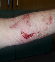 Pictured: The severely injured arm of Diane McPhee when she was attacked by two dogs in the Tonna area on Neath, south Wales, UK.<br /> Re: Diane McPhee was attacked by two rottweiler dogs which were at the time handled by Ailsa Lisanna Truman, while walking her own dog Boomer in a path in the Tonna area of Neath, south Wales. She was saved by farmer Richard Williams who was working on his property nearby. Subsequently, the case was dropped by a Crown Court judge as the police and the CPS failed to identify the exact dog that bit Mrs McPhee.