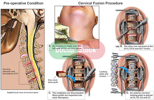 Spine Injury - C4-5, C5-6 and C6-7 Stenosis and Disc Herniations with Subsequent Discectomy (Diskectomy) and Multi-level Spinal Fusion Surgery.