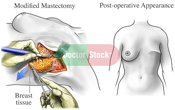 This exhibit shows the surgical incision and removal of the entire breast tissue in a typical mastectomy procedure. Next to it appears a post-operative view of the chest revealing scarring and appearance after surgery.
