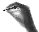 X-ray image of a hand holding a pen (black on white) by Jim Wehtje, specialist in x-ray art and design images.