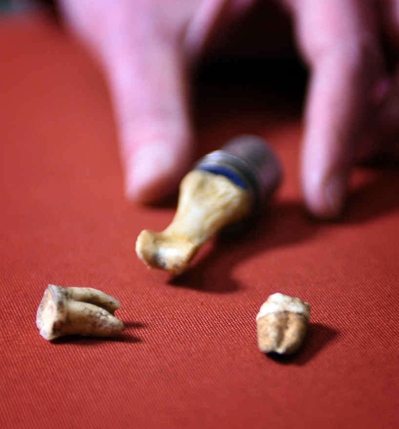 KING JOHN'S TEETH BEING PREPARED FOR DISPLAY AT THE BRITISH LIBRARY AHEAD OF THEIR EXHIBITION MAGNA CARTA:LAW,LIBERTY,LEGACY OPENING 13TH MARCH.