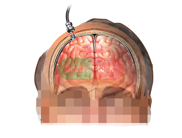 This stock medical image features a coronal (anterior cut section) view of a white male with an Intracranial pressure monitor (ICP) bolt shown in place. The probe tip is clearly seen coming through a hole made into the scalp and skull with the tip coming into contact with an injured and swollen brain.