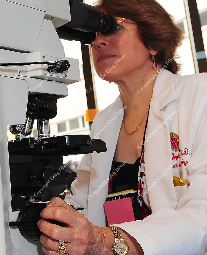 Carol Spiegel examines bacteria on the powerful microscope that takes up most of her office desk at the UW Hospital laboratory in Madison on Tuesday