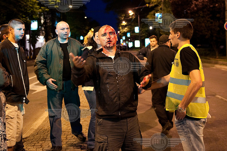 A Mladic supporter injured after clashing with police. Ratko Mladic has been arrested by Serbian security forces on charges of genocide, crimes against humanity and war crimes. He is one of the most sought after suspects from the Bosnia conflict and is facing extradition.