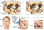 This full color medical exhibit shows multiple facial fractures with surgical fixation. The inuries include fractures of the orbital wall and floor,  maxillary frontal