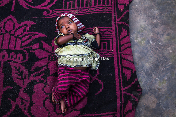 7 month old Nisha seen on the floor of her house in Joganiya B in Saptari, Nepal. Nisha was referred by a female health worker and was diagnosed on Feb 12, 2014. MUAC - 85 mm, Weight - 4kg, and Height - 56.5 cm.