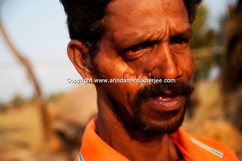 Bimal Halder, 37, is a victim of a tiger attack, who fought the tiger empty-handedly and could escape a certain death. He was in the local hospital for one year before he got partially cured with deep scars on the face and head. Since then he never went to the forest and now works as a ricksahw puller in his locality. Sunderban, West Bangal, India. April 2011. Arindam Mukherjee