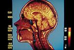 MRI scan of female brain
