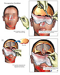 Brain Surgery - Surgical Repairs of Traumatic Brain Injury