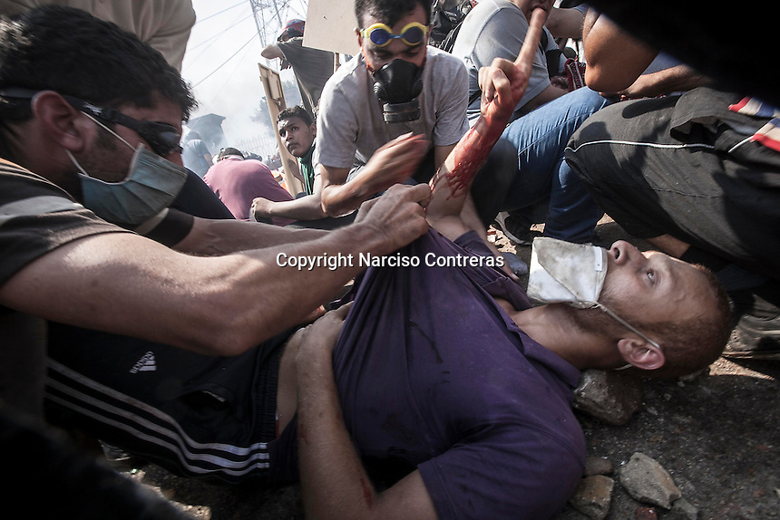 In this Wednesday, Aug. 14, 2013 photo, a supporter of the ousted president Mohammed Morsi gets shot during clashes with security forces in streets around Al-Raba'a Alawya mosque in the Nasr district of Cairo. (Photo/Narciso Contreras).