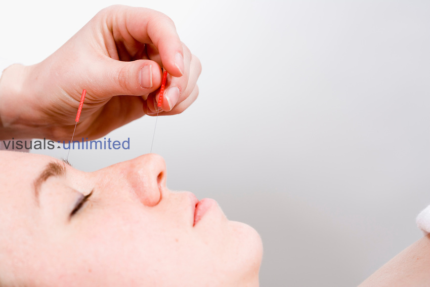 Acupuncture needle treatment