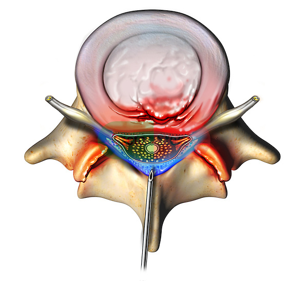 This stock image features a single superior view of a protruding L4-5 intervertebral disc and spinal vertebra. A needle is inserted midline showing the delivery of a blue colored epidural injection into the space surrounding the thecal sac.