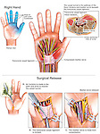 Carpal tunnel syndrome and median nerve release surgery on the RIGHT hand. Depicts color-coded areas of pain and numbness in the thumb and fingers. The second and third illustrations display median nerve compression (neuropathy) in the carpal tunnel. The last three images show surgical steps: A. An incision made into the palm and wrist exposing the carpal tunnel; B. Incision of the transverse carpal ligament; and 3. Surgical release of the compressed median nerve.