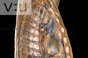 Lateral view of the mediastinal organs in a cadaver dissection.