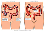 Appendicitis - Inflamed Appendix