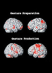 Functional MRI (FMRI): Top - shows brain activity when thinking about an activity. Bottom - shows brain activity when performing the same activity.