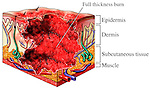 Dramatic illustration showing third degree full-thickness burns of the skin. The drawing demonstrates the depth and trauma of the burned tissue, indicating the damaged skin layers with labels for epidermis, dermis, subcutaneous fat, blood vessels, nerves, and muscle.