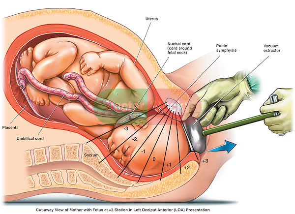 Birthing (Pelvic) Stations - Left Occiput Anterior Presentation/ This medical exhibit depicts a fetus in +3 station of birth during labor and delivery. It is positioned as Left Occiput Anterior (LOA).