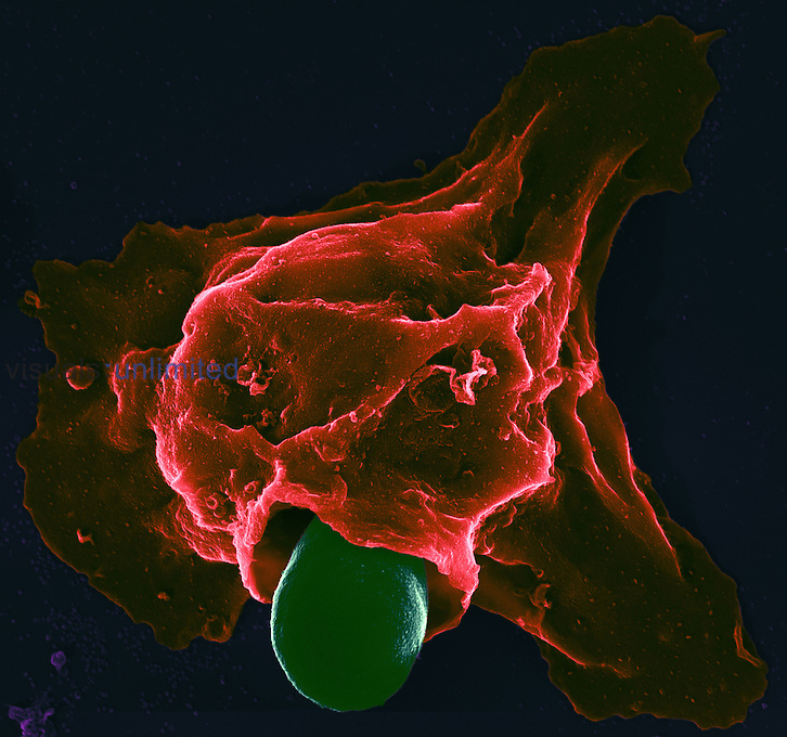 The facultative pathogenic yeast fungus Candida albicans grows long filaments called hyphae (green) and these are being phagocytosed by neutrophil granulocyte white blood cells. SEM