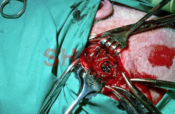 Burr holes being performed on patient during surgery, showing blood clot within skull. This image may only be used to portray the subject in a positive manner..©shoutpictures.com..john@shoutpictures.com