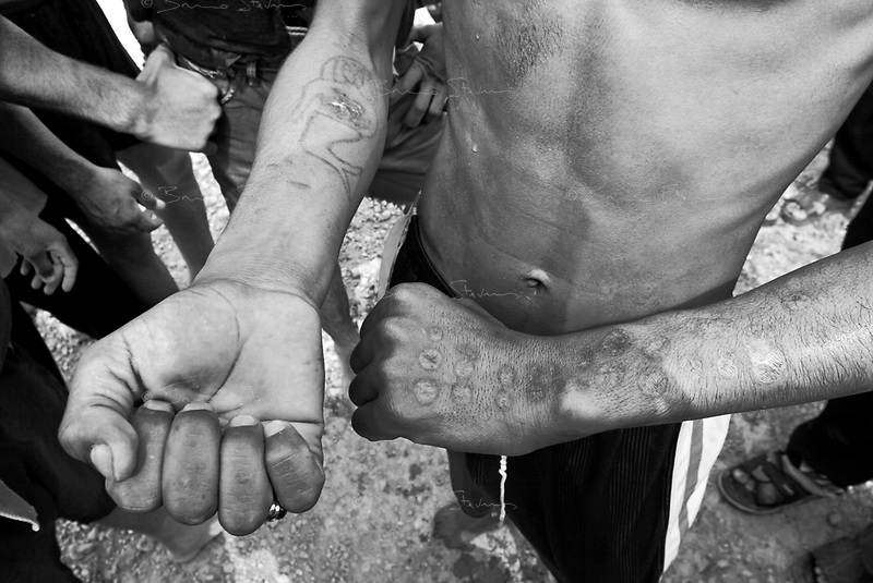 Baghdad, Iraq, May 30, 2003.Mohammed Jabbar, 19, shows cigarette burns scars on his arms. He was repeatedly tortured in Saddam's prisons.