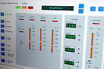 A typical control display for a Hemodialysis Machine. Royalty Free
