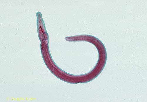 1Y01-016x  Blood Fluke - Trematode parasite/human - Platyhelminthes - Flatworm - Schistosoma haematobium - male