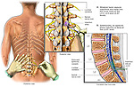 Low Back Pain Management- Lumbar Facet and Epidural Block Injections.
