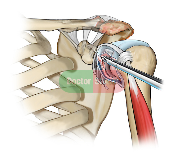 Synovectomy and Labral Tear Debridement; this medical illustration illustrates a shoulder synovectomy and labral tear debridement in a rotator cuff repair.