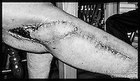 Another operation,post skin graft surgery.....looking like Mom wrestled a shark, and lost.