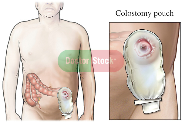 This exhibit features multiple images of a male abdomen after a partial resection with a colostomy stoma created in the anterior abdominal wall. An added enlarged detail illustrates a typical colostomy pouch positioned over the stoma.