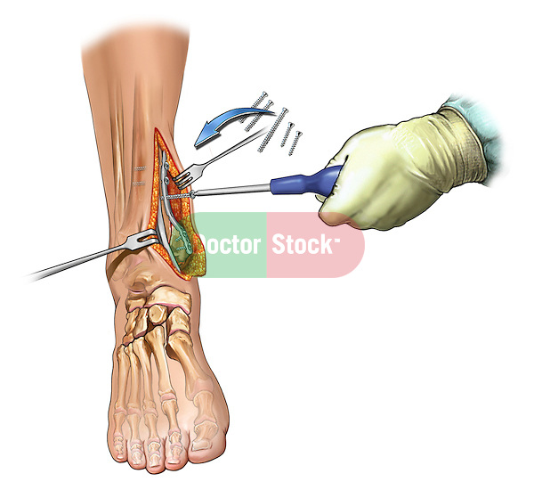 Medial Maleollar Fracture Fixation; this medical illustration depicts the surgical fixation of comminuted medial maleollar fracture.