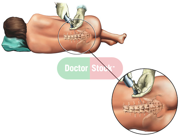 Epidural Nerve Block Injection