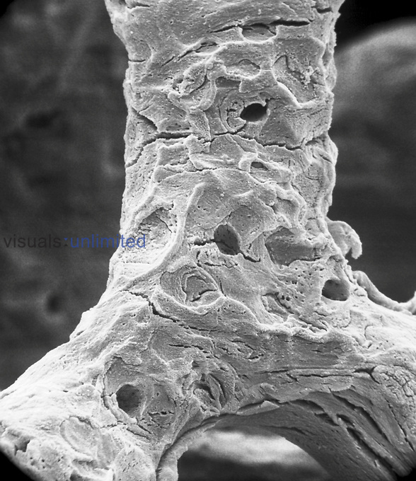 "The anorganic preparation of cancellous bone illustrates the former position of osteoclasts on the trabecular surface. Such areas are characterized by surface depressions referred to as resorption bays or Howship's lacunae. SEM X812  3.5"" X 4.5""  **On Page Credit Required**"