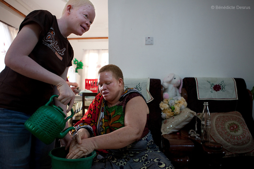 10 june 2010 - Dar Es Salaam, Tanzania - Teresa January (L) and her daughter (R). Samuel Herman Mluge (51yrs) an albino rights activist in Dar Es Salaam, Tanzania and his wife Teresa January (46 yrs) have five children, all with albinism. Albinism is a recessive gene but when two carriers of the gene have a child it has a one in four chance of getting albinism. Tanzania is believed to have Africa' s largest population of albinos, a genetic condition caused by a lack of melanin in the skin, eyes and hair and has an incidence seven times higher than elsewhere in the world. Over the last three years people with albinism have been threatened by an alarming increase in the criminal trade of Albino body parts. At least 53 albinos have been killed since 2007, some as young as six months old. Many more have been attacked with machetes and their limbs stolen while they are still alive. Witch doctors tell their clients that the body parts will bring them luck in love, life and business. The belief that albino body parts have magical powers has driven thousands of Africa's albinos into hiding, fearful of losing their lives and limbs to unscrupulous dealers who can make up to US$75,000 selling a complete dismembered set. The killings have now spread to neighbouring countries, like Kenya, Uganda and Burundi and an international market for albino body parts has been rumoured to reach as far as West Africa. Photo credit: Benedicte Desrus