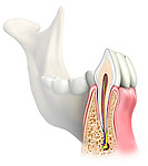 This stock medical image features a cut-section through the mandible and lower incisor revealing the internal anatomy of the tooth and its root structure.