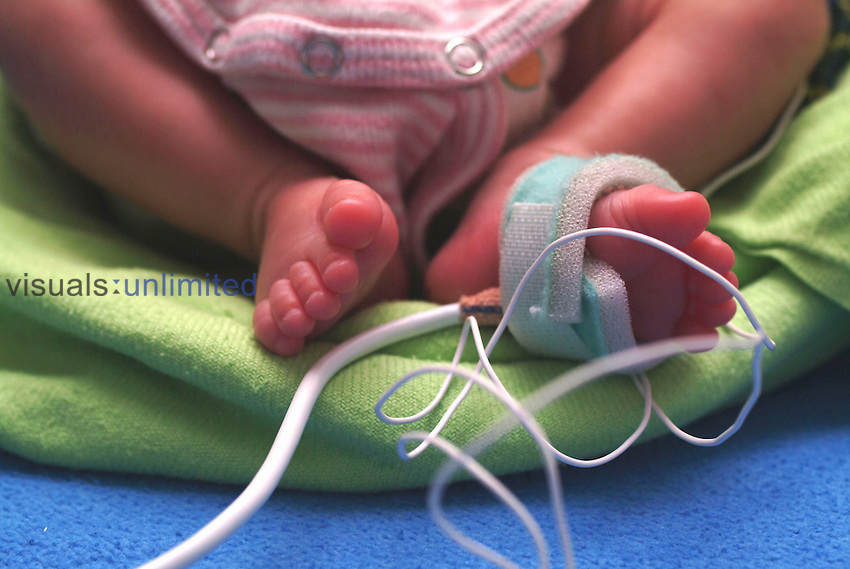Pulse monitor on a baby's foot