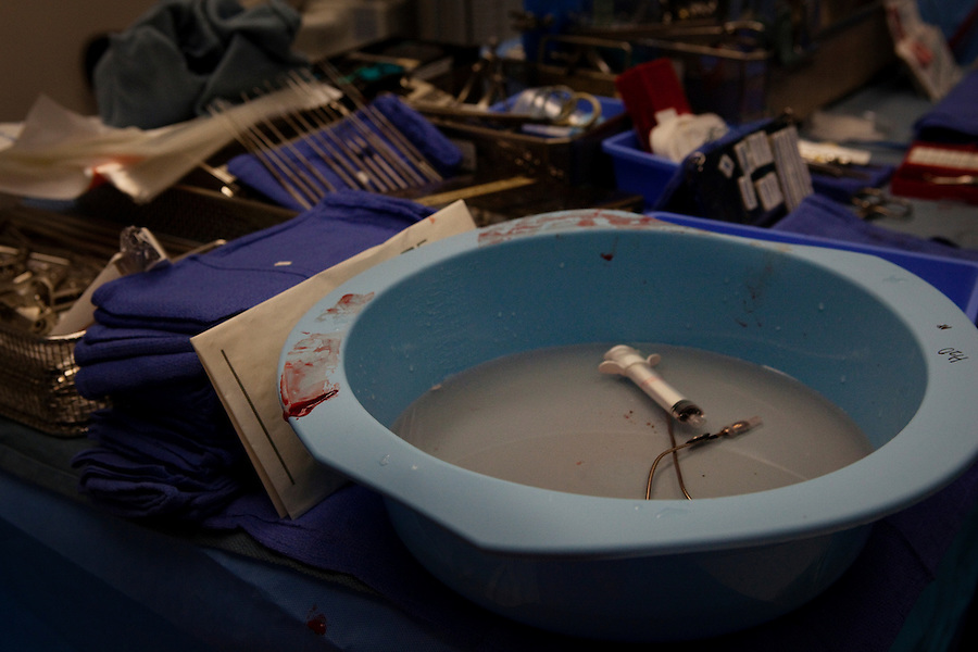 San Francisco, California, January 7, 2011 - A bowl of used Lactated Ringer's solution - a saline solution with added electrolytes that is used to keep the brain set during surgery - sits on the surgical instrument table after a brain surgery in which the patient bled substantially. .