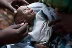 MATHAHALIBAH, KENYA - JULY 4: Umi Adan Olow, 3 months old, is examined by Daniel Wanyoike, a community therapeutic nurse for Save the Children on July 4, 2011 in Mathahalibah, Kenya. The child weighed 1,7 kilograms. The team examined about thirty children, among them some severely malnourished. Umis's mother brought her to the outreach site. The child has been sick a lot since birth. Amina Yare Isak, her mother, has two other children in the Save the Children nutrition program. The mother blames the drought for her children's sickness. Her livestock was finished and the lack of milk made her children malnourished. Two successive poor rains, entrenched poverty and lack of investment in affected areas have pushed millions of people into a fight for survival in the Horn of Africa. This is the driest this area have been since sixty years. (Photo by Per-Anders Pettersson)