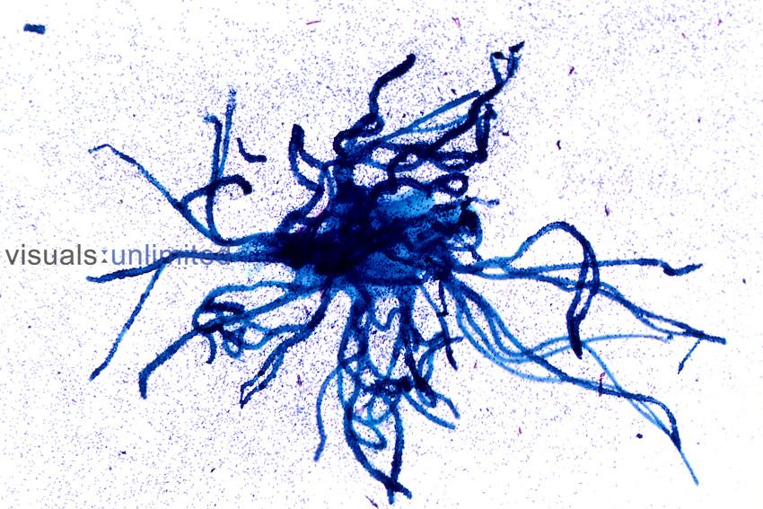 Ceratomyxa, Myxozoa. LM X5