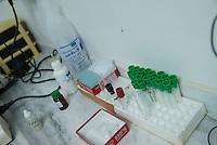 Sehid Xebat Hospital unter YPG-Verwaltung in Qamishli, Rojava/Syrien.<br /> Im Bild: Das Labor des Krankenhauses. Bis auf ein Mikroskop sind alle Geraete defekt.<br /> 14.12.2014, Qamishli/Rojava/Syrien<br /> Copyright: Christian-Ditsch.de<br /> [Inhaltsveraendernde Manipulation des Fotos nur nach ausdruecklicher Genehmigung des Fotografen. Vereinbarungen ueber Abtretung von Persoenlichkeitsrechten/Model Release der abgebildeten Person/Personen liegen nicht vor. NO MODEL RELEASE! Nur fuer Redaktionelle Zwecke. Don't publish without copyright Christian-Ditsch.de, Veroeffentlichung nur mit Fotografennennung, sowie gegen Honorar, MwSt. und Beleg. Konto: I N G - D i B a, IBAN DE58500105175400192269, BIC INGDDEFFXXX, Kontakt: post@christian-ditsch.de<br /> Bei der Bearbeitung der Dateiinformationen darf die Urheberkennzeichnung in den EXIF- und  IPTC-Daten nicht entfernt werden, diese sind in digitalen Medien nach §95c UrhG rechtlich geschuetzt. Der Urhebervermerk wird gemaess §13 UrhG verlangt.]