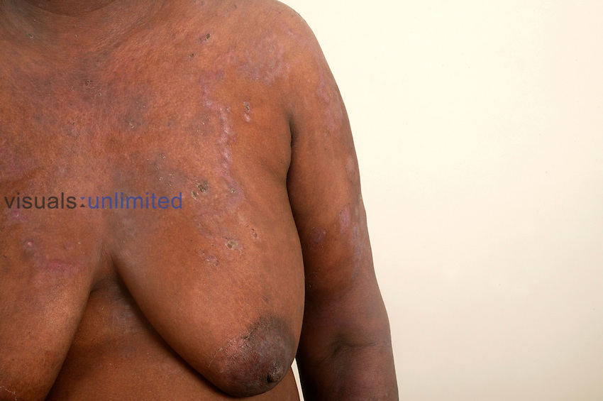 Upper torso of a 50-year-old female suffering from Pemphigus Vulgaris.