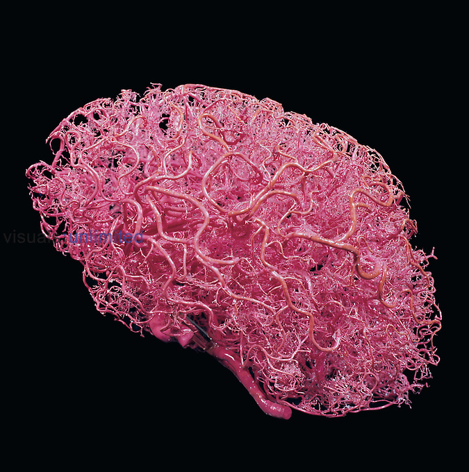 Resin cast of arteries in the brain