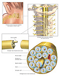 This medical exhibit series depicts the anatomy of a spinal nerve in the neck region at the microscopic level. Beginning with a posterior (back) view of the spinal nerves in an infant's neck, the illustration progressively digs deeper showing enlargements of the nerve and axon bundle. Labels include blood vessels, Schwann cell nucleus, myelin sheath, axon, and cut axon bundle.